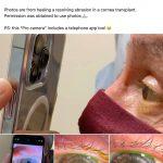 iphone 13 pro makro cekim goz tedavisi